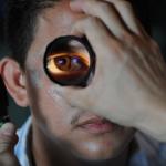 ハムスターの耳と目の病気について調べました