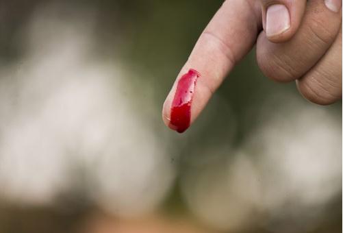 ハムスター 手 噛む 痛い 血